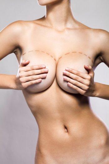 la chirurgie des seins hypertrophie mammaire dr chabas chirurgien esth tique avignon dans. Black Bedroom Furniture Sets. Home Design Ideas